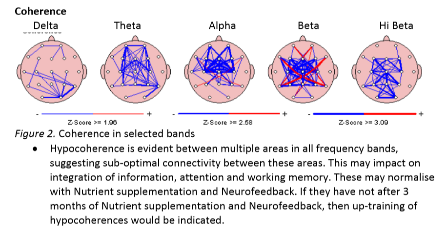 QEEQ in Mapping | Advanced Wellness & Behavioural Centre Qeeg In Mapping on